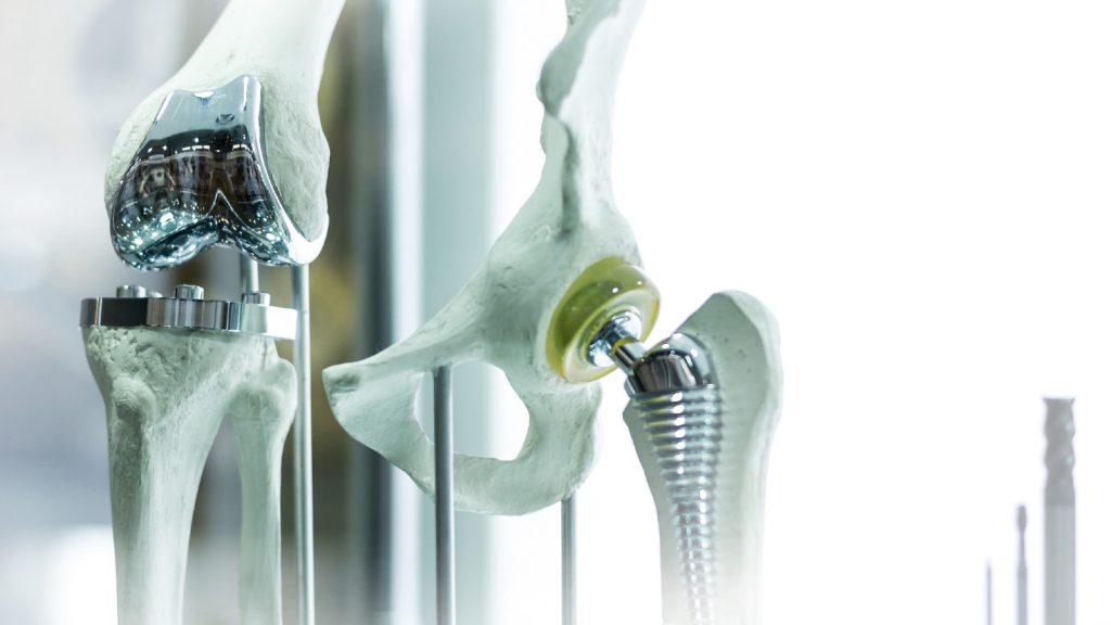 ریخته گری دقیق آلیاژ پایه کبالت صنعت گستر | زانوهای فمورال تجهیزات پزشکی ارتز و پروتز